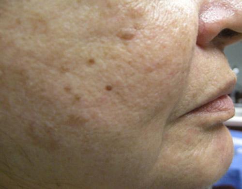 Cosmetic regenerative medicine 3