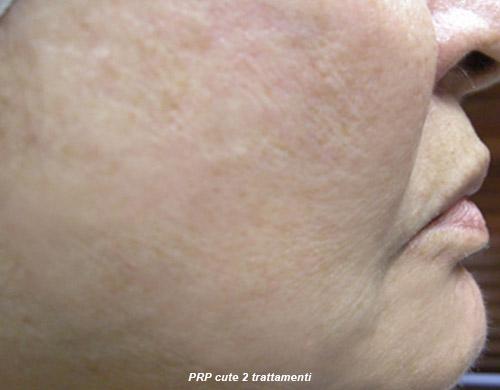 Cosmetic regenerative medicine 4